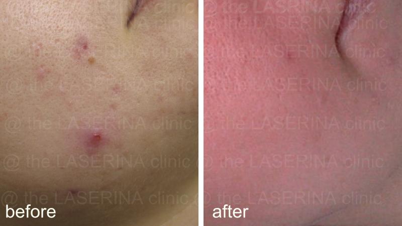 result of laser treatment