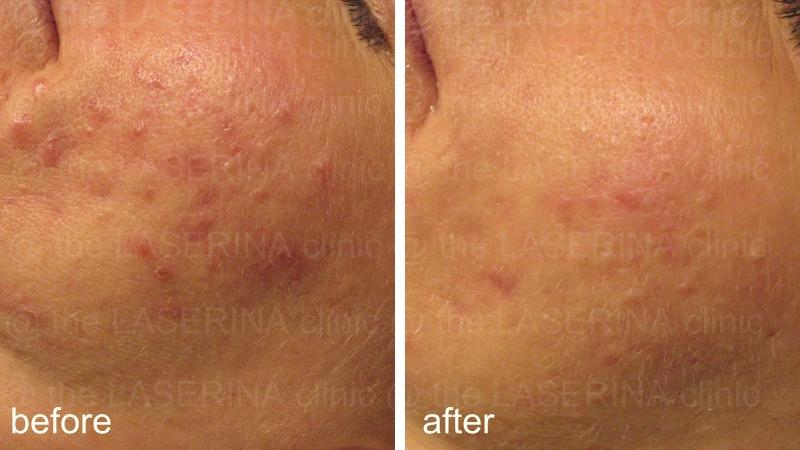 result of IPL acne treatment