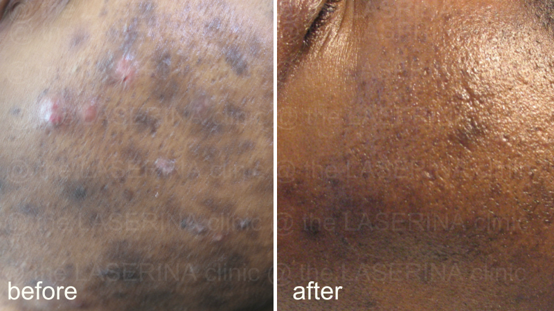 result of combined skin inflammation therapy