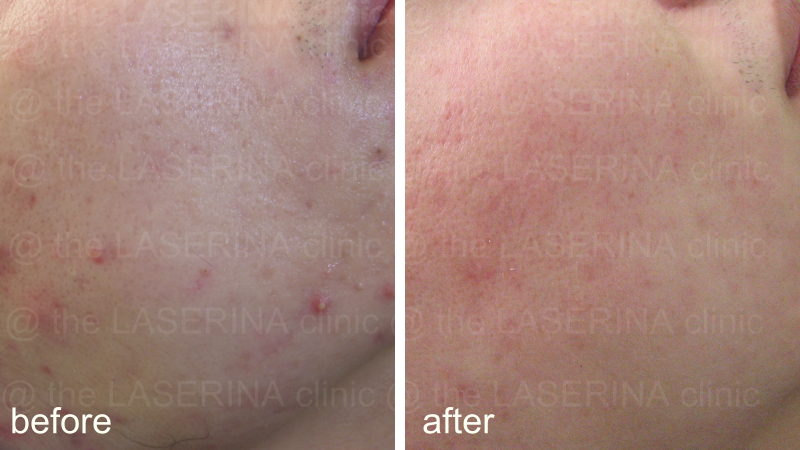 result of acne treatment