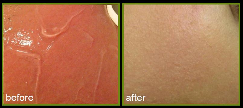 result of red face laser