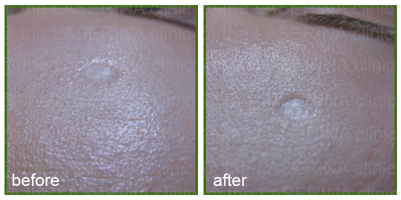 chicken pox indentation skin improvement