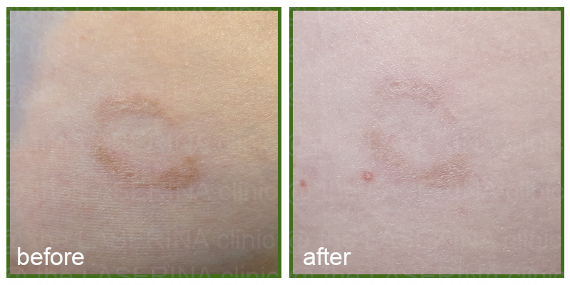 pigmentation skin trauma therapy result