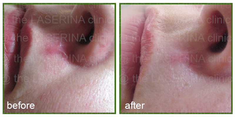 PRP scarring treatment
