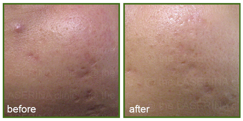 laser for acne scarring