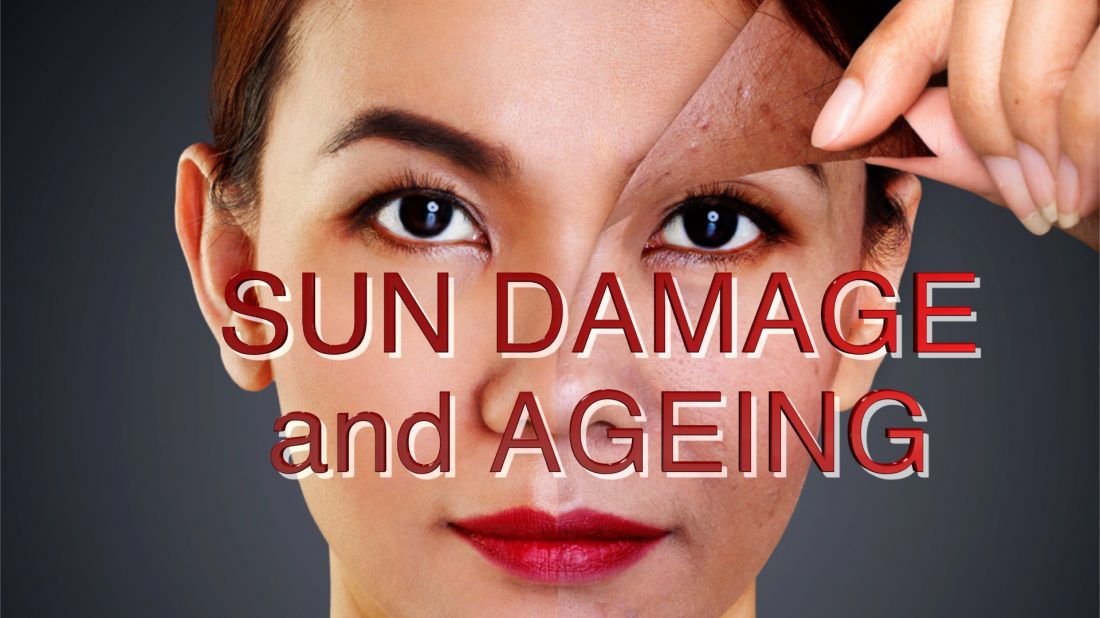 SUN DAMAGE treatments, what to expect…