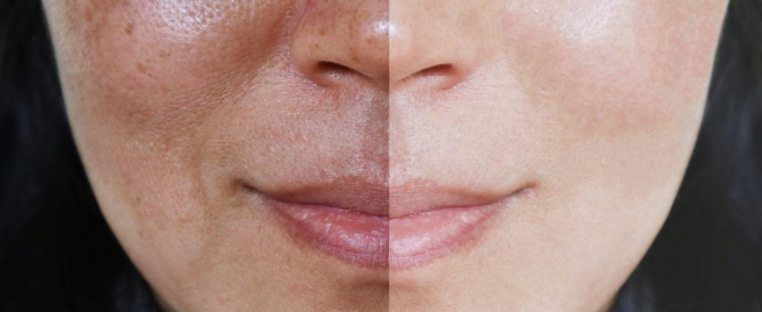 UNWANTED PIGMENTATION – MELASMA TREATMENT