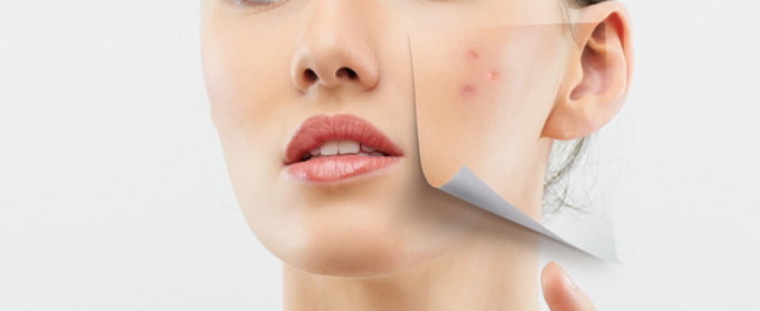 Adult acne: types, causes, myths and treatments